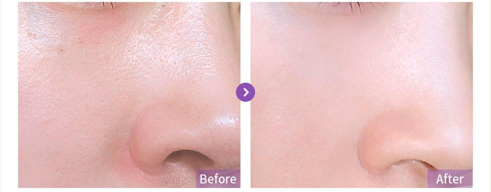 Blithe-Patting-Splash-Mask-Rejuvenating-Purple-Berry-3.jpg